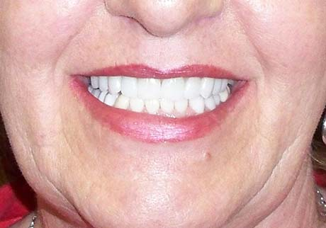 Centennial Cosmetic Dentist After Treatment Photo
