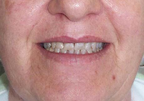 Centennial Cosmetic Dentist Before Treatment Photo