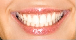 dental bonding centennial co