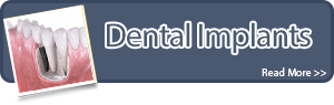 btn-dental-implants