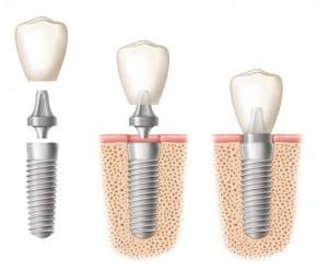 dental implants in centennial, co