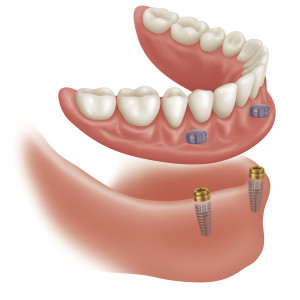 Centennial, CO dental implant dentures